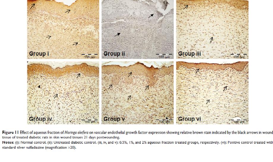 تاثیر عصاره گیاه مورینگا اولیفرا بر فاکتور رشد اندوتلیال رگ درمان زخم پای دیابتی تاثیر شگفت انگیز گیاه مورینگا اولیفرا در بهبود و درمان زخم پای دیابتی 6