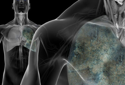 lung-cancer-s1-photo-of-lung-cancer