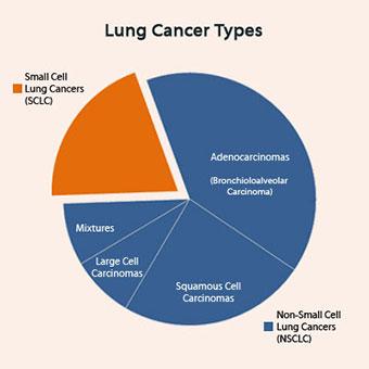 انواع سرطان ریه آشنایی با سرطان ریه و انواع آن آشنایی با سرطان ریه و انواع آن lung cancer s7a types sclc nsclc